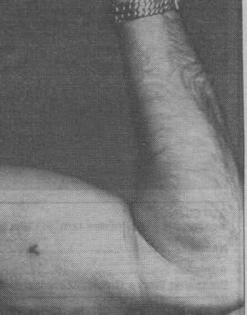 ¿Por qué los nazis llevaban un tatuaje en la axila?